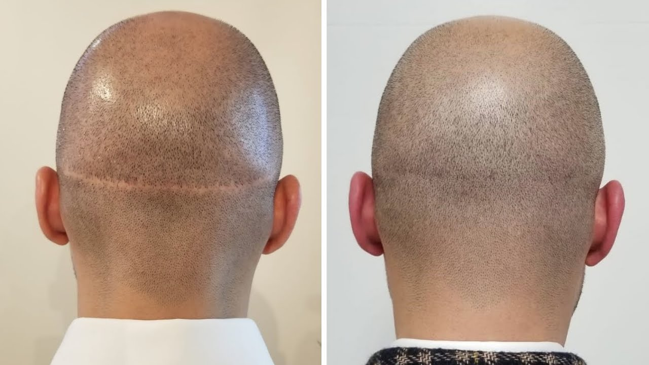 Important points on Scalp Micropigmentation Los Angeles